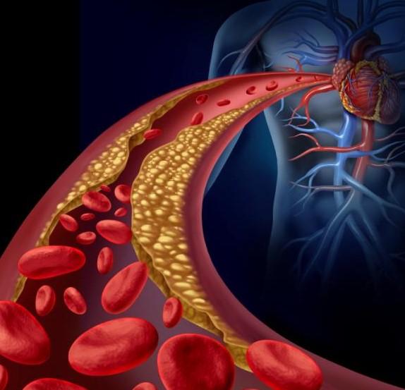 Arteriosclerosis - PORTALGERIATRICO
